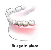 Realistic smile after tooth loss is possible with dental bridges