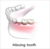 Dental bridges consist of one or more artificial teeth held in place by dental crowns covering missing teeth